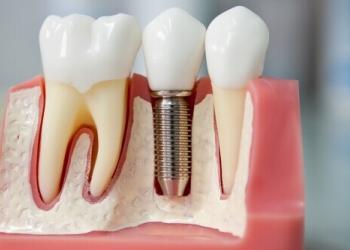 Стоит ли бояться имплантации зубов