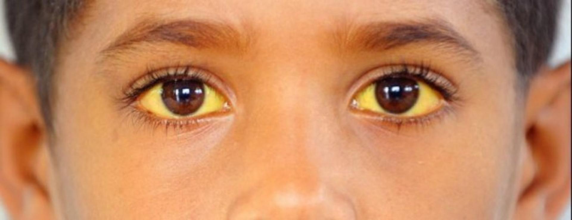 Комплексное обследование с целью исключения Синдрома Жильбера