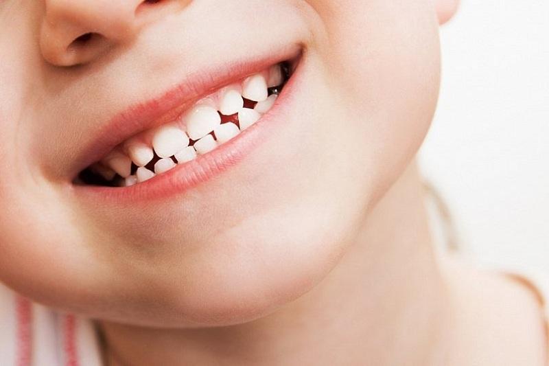 Здоровые зубки в Бест Клиник