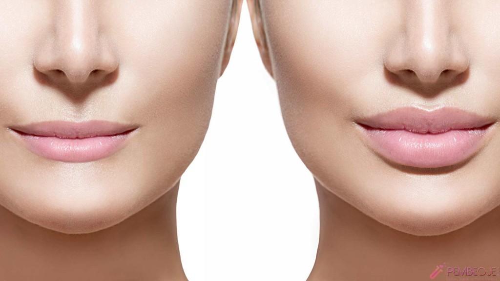 Увеличение губ со скидкой