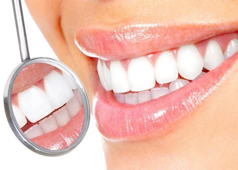 Профессиональная чистка зубов всего за 2990 рублей