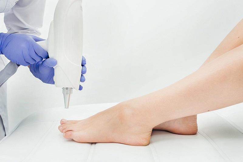 Лазерное лечение грибка ногтей со скидкой 20%