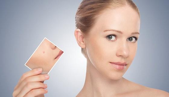 Удаление рубцов, шрамов и новообразований кожи на лице и теле от 3 800 руб.!