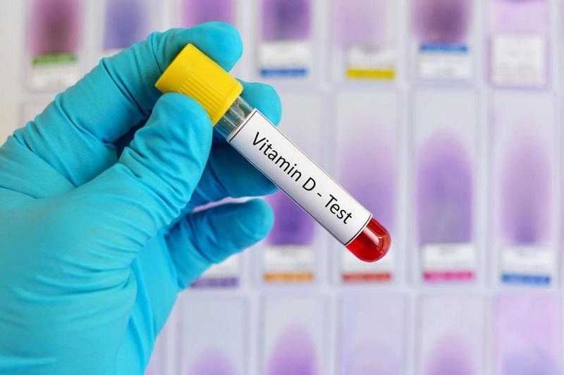 Акция «Анализы на витамин Д со скидкой до 38%»