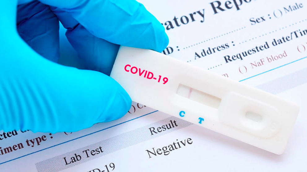 Исследование на антитела igG к новому коронавирусу SARS-CoV-2 в ПАТЕРО клиник