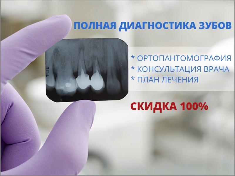 Полная диагностика зубов бесплатно!